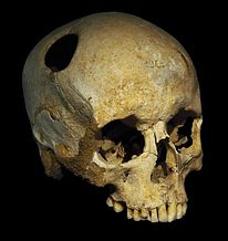 Trephining shows that prehistoric medicine could be quite sophisticated