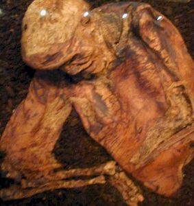 Lindow Man: How did Pete Marsh die?